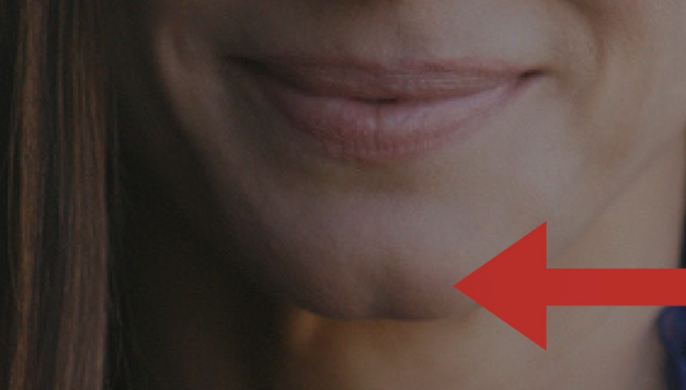 why-only-some-people-have-chin-dimples